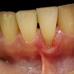 ogoleni zubi